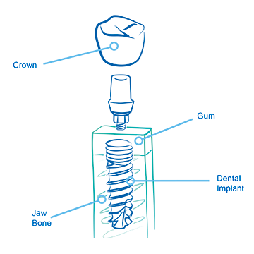 Single tooth implant sketch