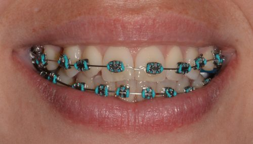 Teeth with dental braces